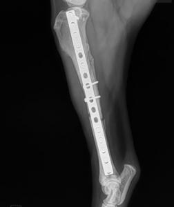 Orthopedic Surgery - Kingsburg, Selma, Hanford, Reedley, Visalia, Fresno, Clovis, Coalinga, Fowler, Lemoore, Sanger, and Tulare